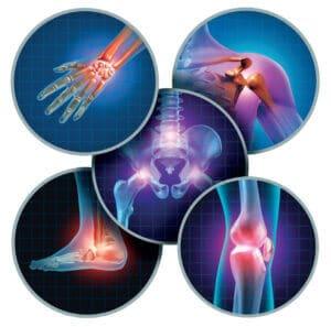Consult reumatologie