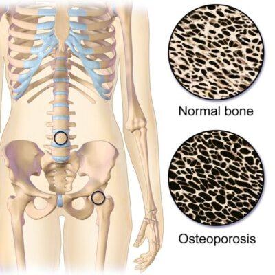 Osteopenie vs. Osteoporoza